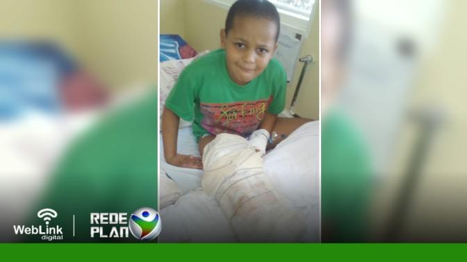 Menino teve complicações na perna e precisa de ajuda – a mãe está desempregada | RP