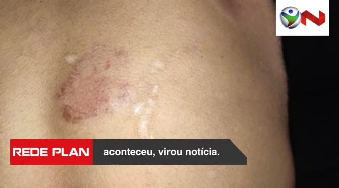 Mãe é presa em Goiânia após morder filho de 9 anos que estaria com pés sujos no sofá | RP